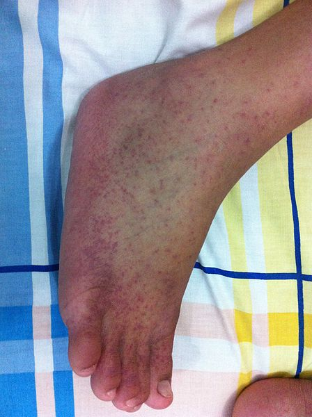 Rash from chikungunya on the right foot